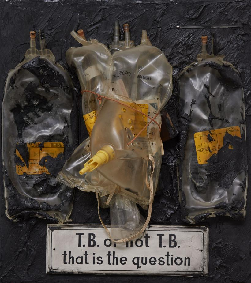 T.B. or not T.B.